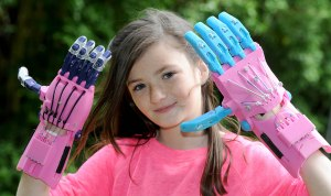 Baylee Abbott(11) from Oxton who  has a thumb and three fingers missing has had a prosthetic hand made using a  3d printer.  Baylee with a few versions of the hand